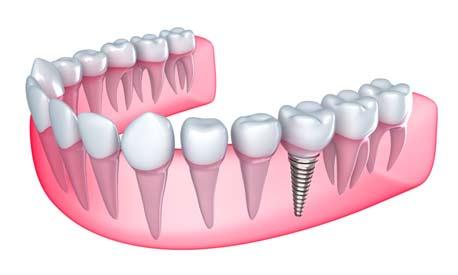 Dental Implant in Panchkula